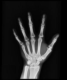 x-ray-1704855__340